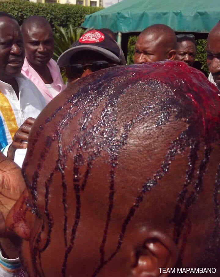 MAN BEATEN BY POLICE BLEEDS AFTER IEBC PROTESTS